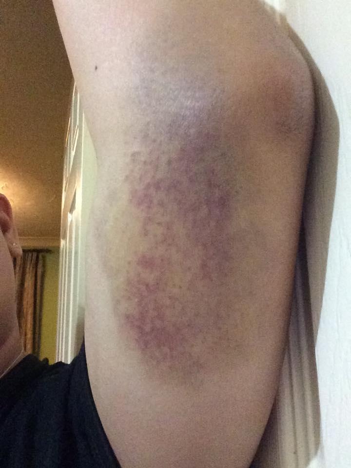 humdinger of a bruise